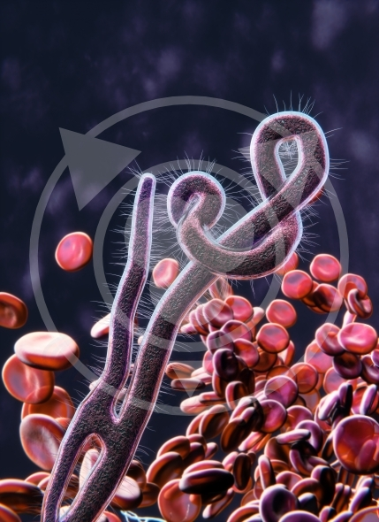 ebola shown in the image